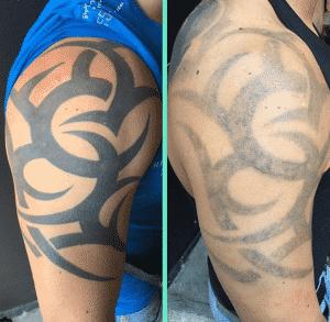 Estudios de Tatuajes en Bilbao - Eliminar tatuaje para Cover up