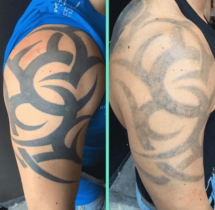 Eliminar tatuaje para Cover up