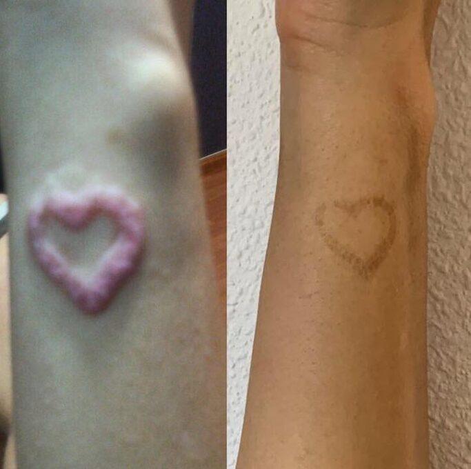 Eliminación tatuaje por alergia a la tinta
