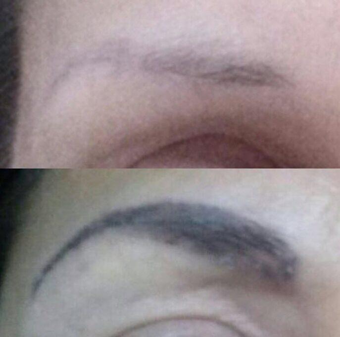 Eliminación cejas micropigmentación