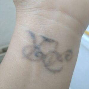 Eliminar tatuajes en Zaragoza - Eliminación de tatuaje