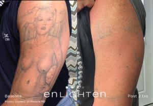 Eliminar tatuajes - Tatuaje 1