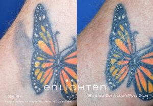 Eliminar tatuajes - Eliminar tatuaje
